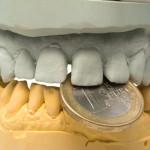 Implants dentaires : zoom sur les options de remboursement